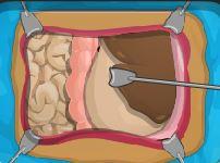 بازی آنلاین جراحی معده