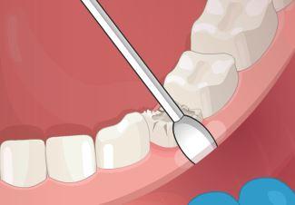 بازی دندانپزشکی